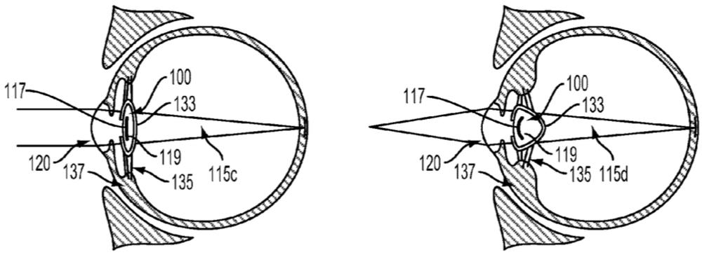 artificial-lens
